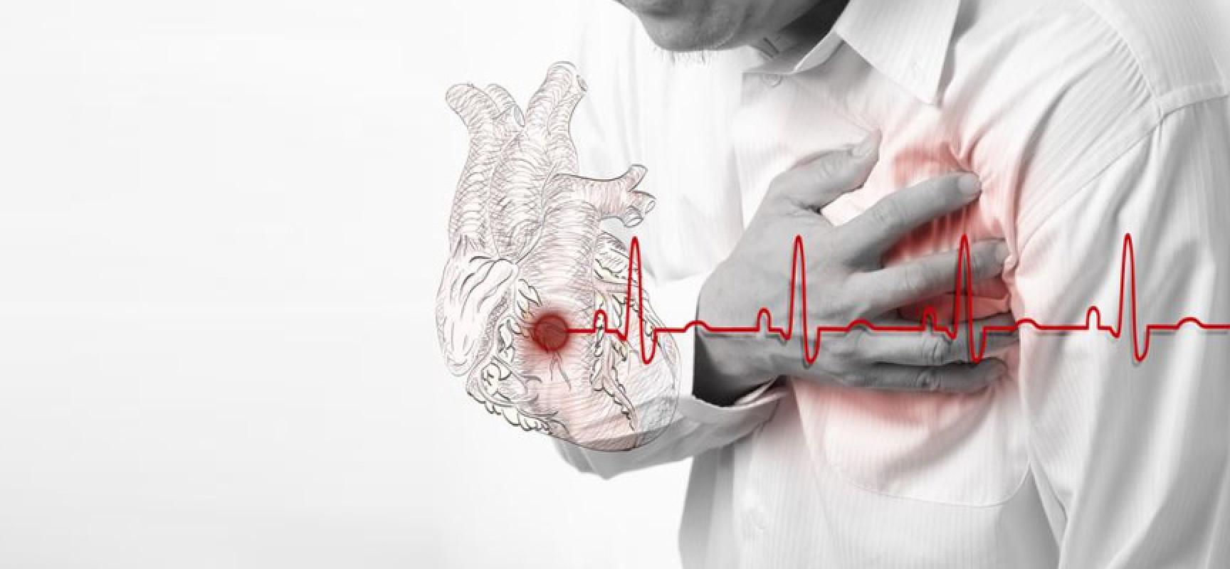 Гипертоническая болезнь с сердечной недостаточностью