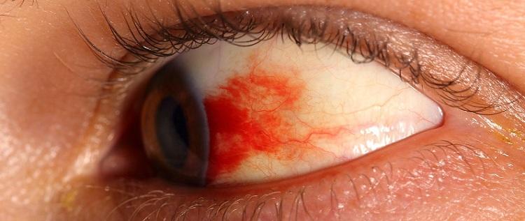 Как сделать капилляры в глазу