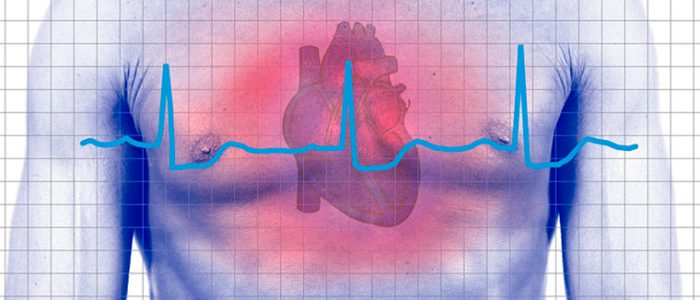 Степени аритмии сердца