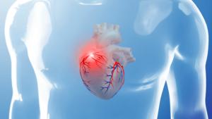 Увеличение левого желудочка сердца