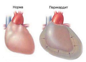 Учащенное сердцебиение при пониженном давлении
