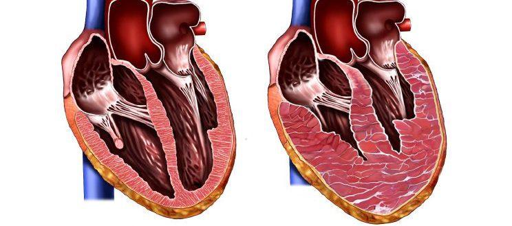 Гипертрофия левого желудочка сердца: лечение, причины, признаки